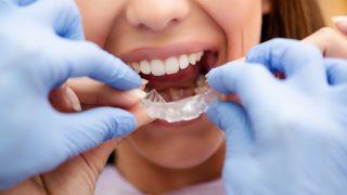 歯の矯正のメリット